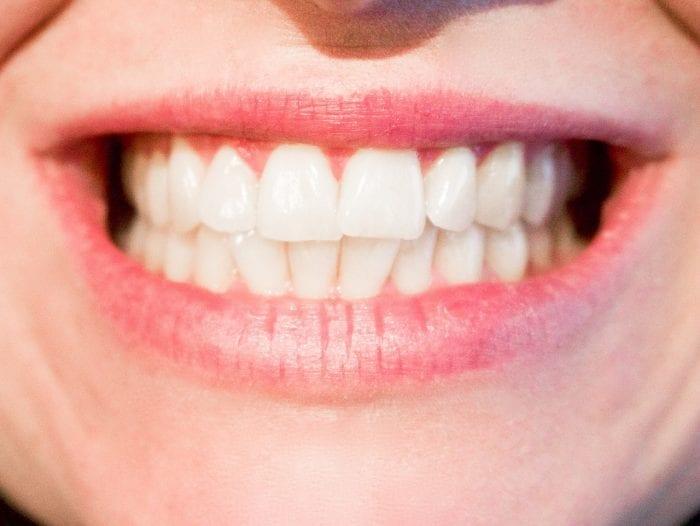 40代過ぎたら歯の定期的なクリーニングに行こう