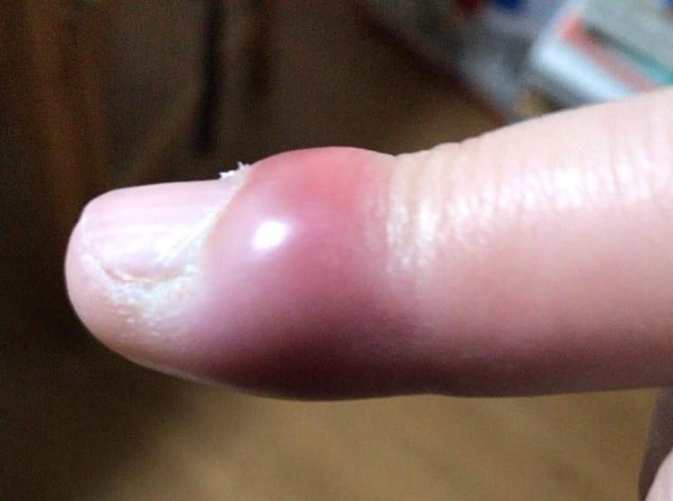 ひょうそで指先が赤く腫れ上がりパンパンな様子の画像イメージ