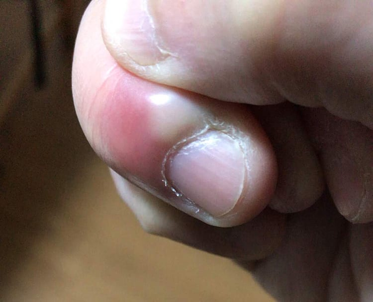 膿がたまっているひょうそになった右手の薬指を親指で押す画像