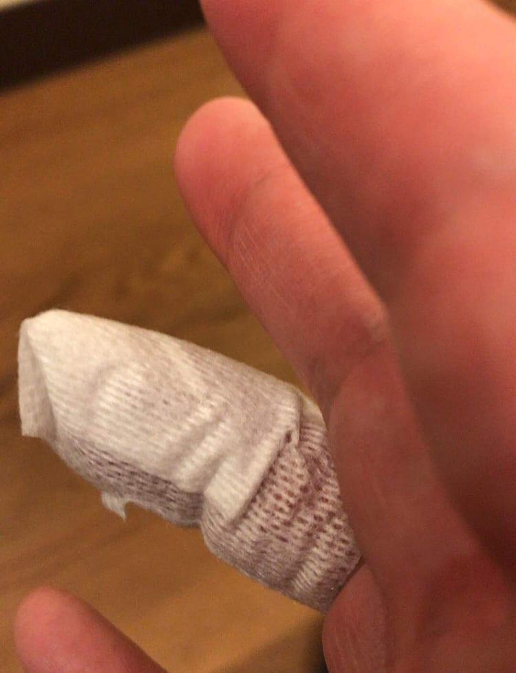 ひょうその治療後に薬指に巻かれた包帯