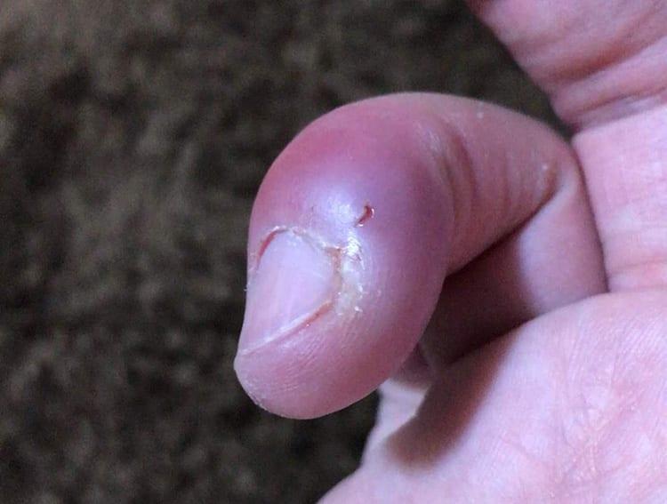 注射針を刺された後の傷口