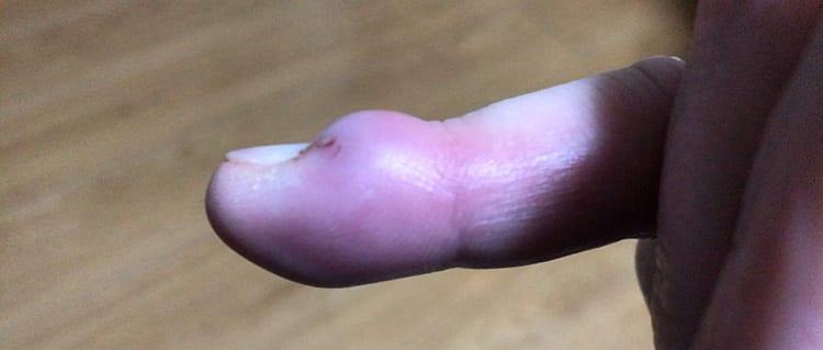 ひょうそで指の形が変わるほど腫れ上がっている指先の画像イメージ