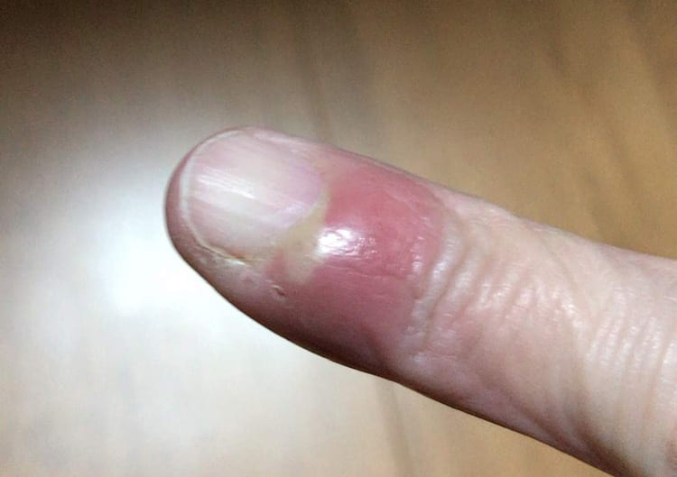 ひょうそによる指先状況:治療から3日経過した画像