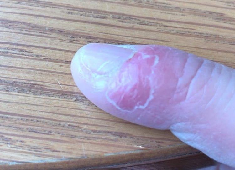 ひょうそによる指先状況:治療から4日経過した画像