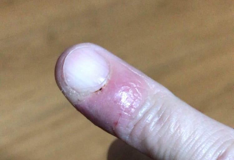 病院での治療後に多少良くなってきた指先の画像イメージ