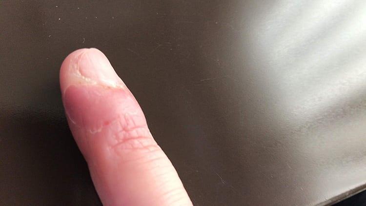 ひょうそによる指先状況:治療から6日経過した画像